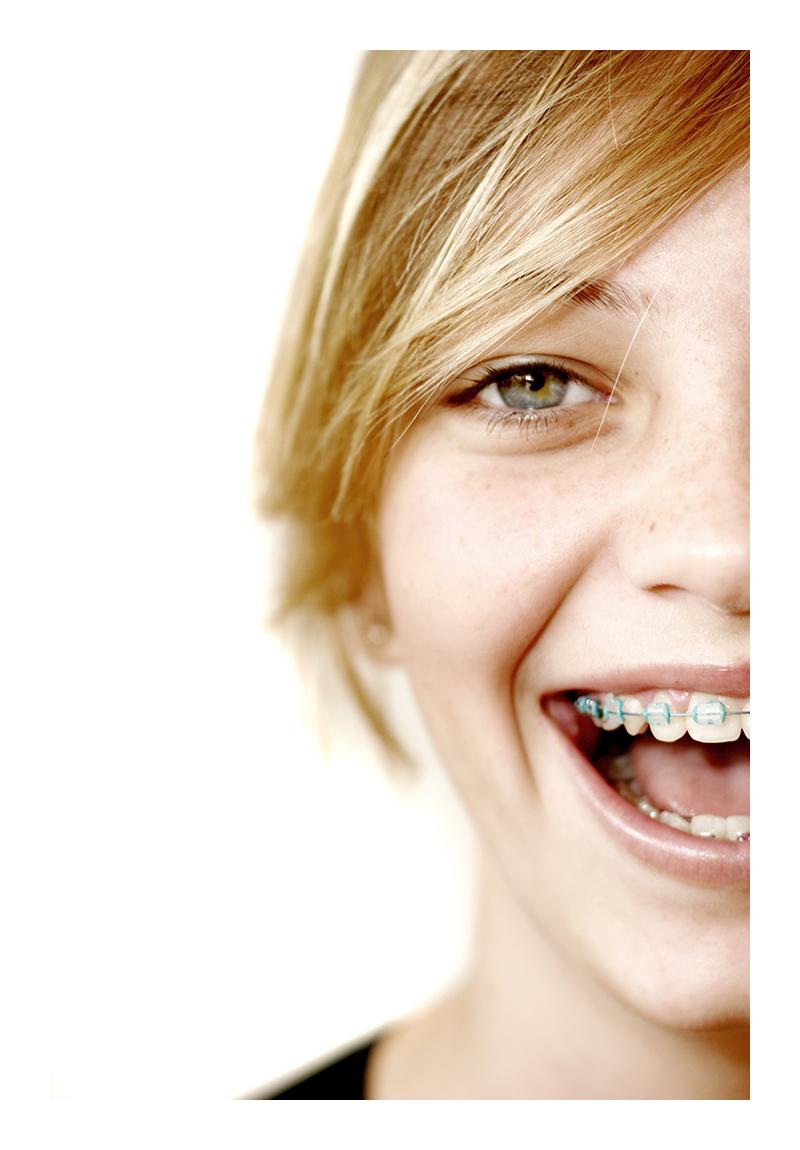 Retirar o aparelho fixo antes do tempo pode levar seus dentes entortarem novamente