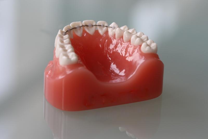 Contenção para os dentes não entortarem ortodontista florianópolis