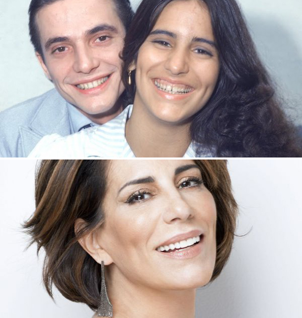 Sorriso Gengivoso Cirurgia Dentista SC Gloria Pires