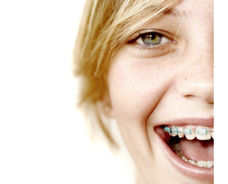 Fiz um tratamento ortodôntico e sinto meus dentes tortos novamente, o que fazer?